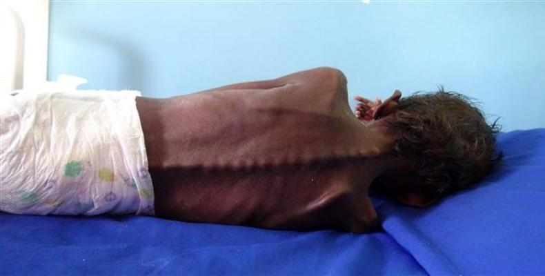 A five-year-old Yemeni boy suffering from severe malnutrition on a bed at a treatment clinic in Khokha district in the western province of Hudaydah, Yemen.  Pho