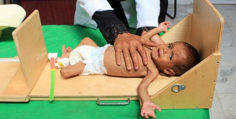 A Yemeni child suffering from severe malnutrition is measured at a hospital in northwestern Hajjah province, on January 26, 2019.  Photo: AFP