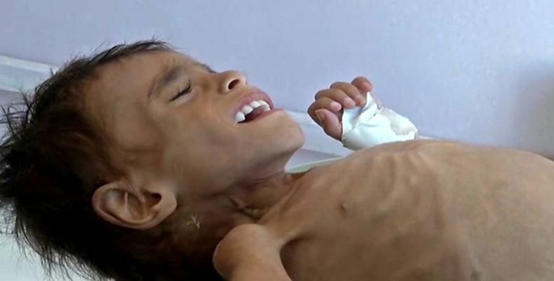 UN report show Yemeni child dies every 10 minutes from war-caused disease, hunger.  Photo: Reuters