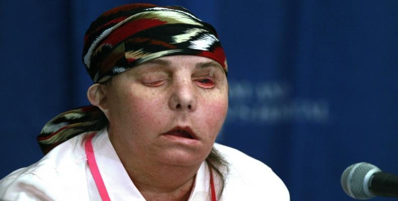 Carmen Blandin Tarleton, tras recibir el primer trasplante de cara, en el Hospital Brigham and Women's, Boston, EE.UU., el 1 de mayo de 2013.Charles Krupa / AP
